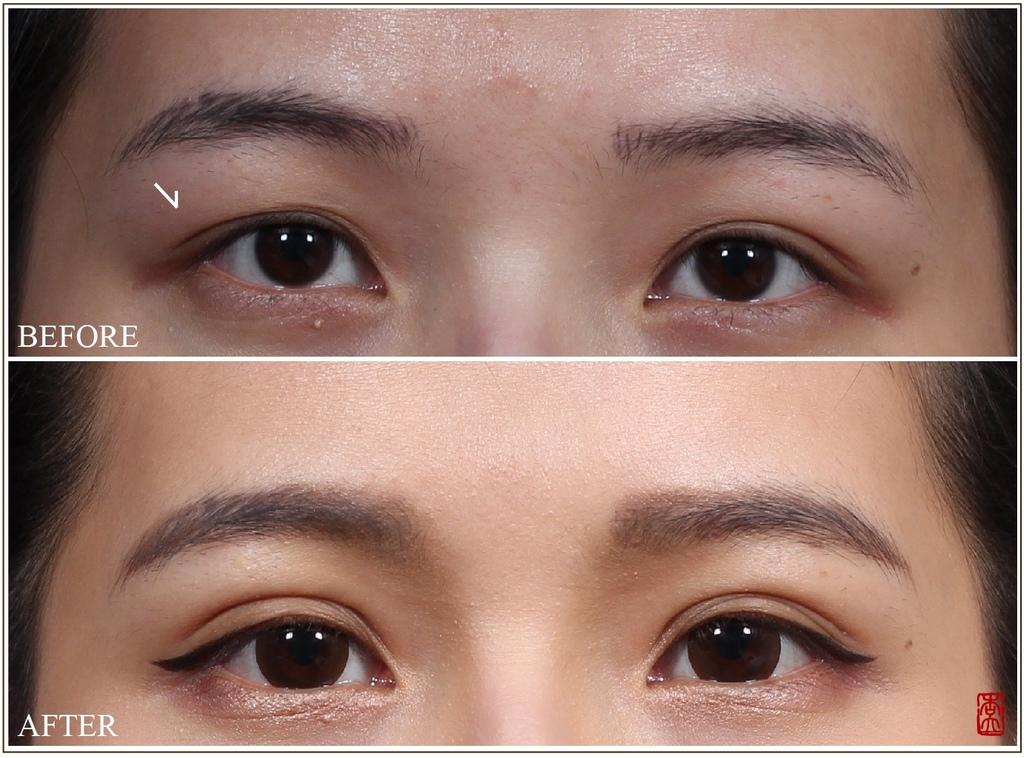 雙眼皮手術.jpg