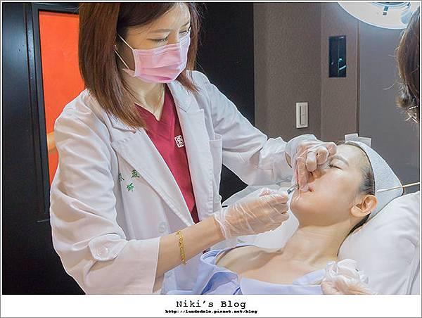 玻尿酸分享 - 可愛的鼻形♥杏立博全微整玻尿酸隆鼻櫻花雷射約會前小心機6.jpg