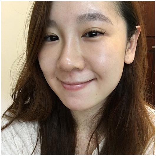 玻尿酸分享 - 可愛的鼻形♥杏立博全微整玻尿酸隆鼻櫻花雷射約會前小心機20.jpg