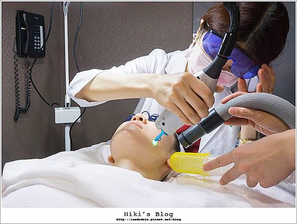 玻尿酸分享 - 可愛的鼻形♥杏立博全微整玻尿酸隆鼻櫻花雷射約會前小心機23.jpg