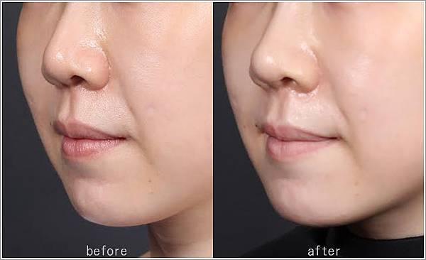 玻尿酸分享 - 可愛的鼻形♥杏立博全微整玻尿酸隆鼻櫻花雷射約會前小心機29.jpg