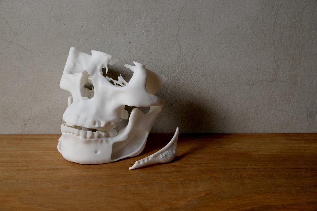 正顎手術.jpg