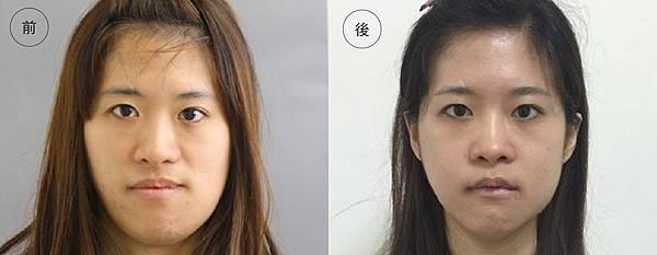 正顎比對8.jpg