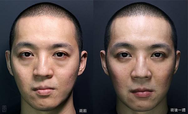 Eyebag_02.jpg