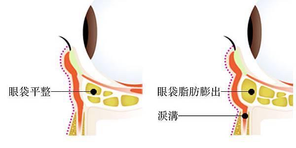 Eyebag_10.jpg