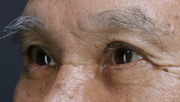 Eyebag_23.jpg