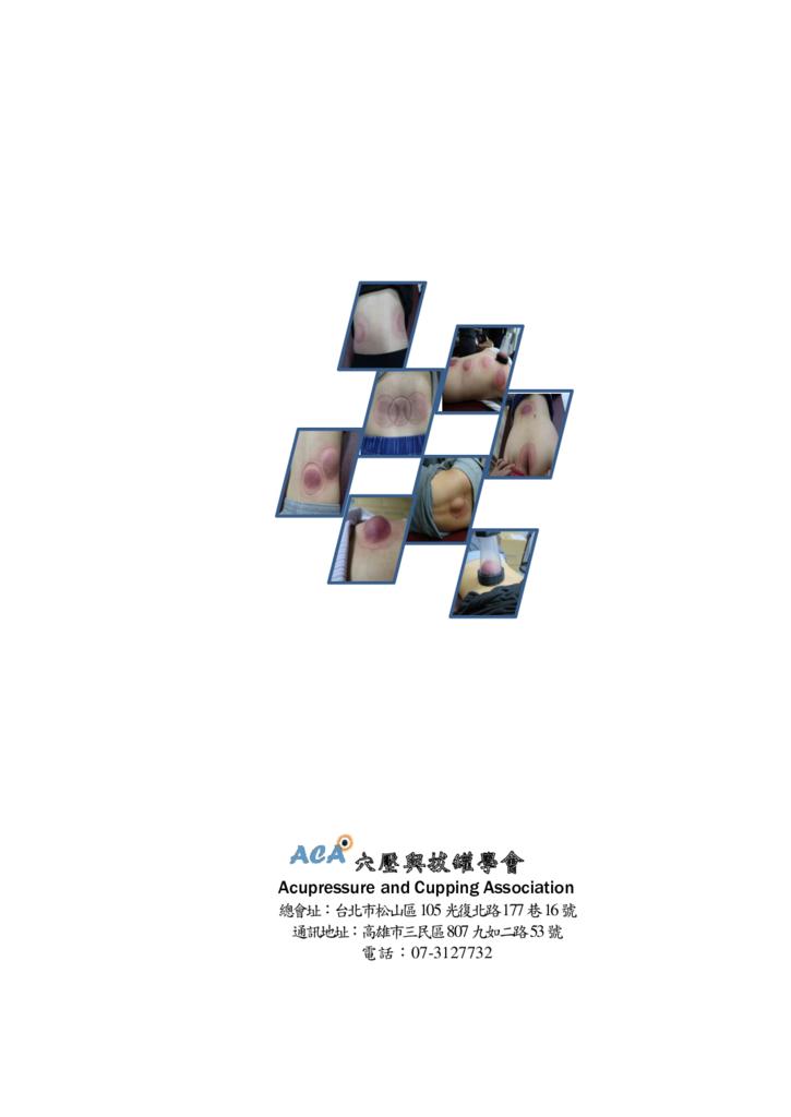 第三期改第30頁Journal of Neo-Medicine Vol 2 No 2 20191003_p110.png