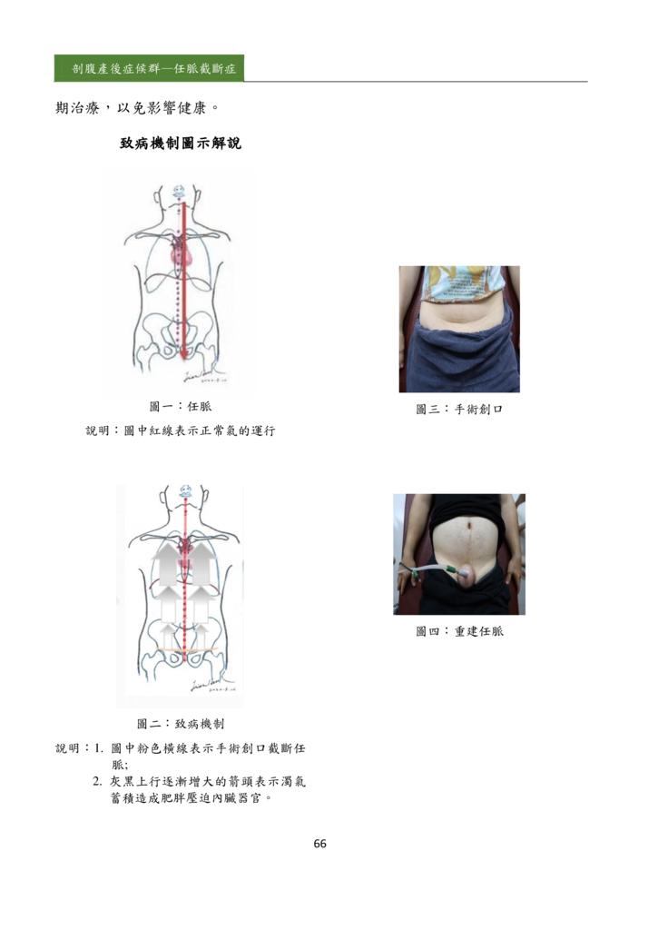 新醫學雜誌第5期PDF版_068.png