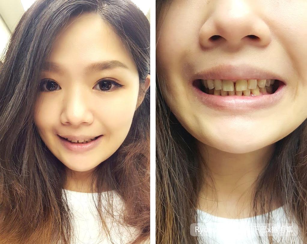 中午不休息!康河牙醫診所 植牙諮詢+洗牙紀錄 捷運台北小巨蛋