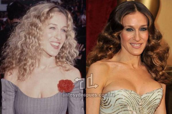 sarah-jessica-parker_breast-augmentation_antesydespues.com.ar