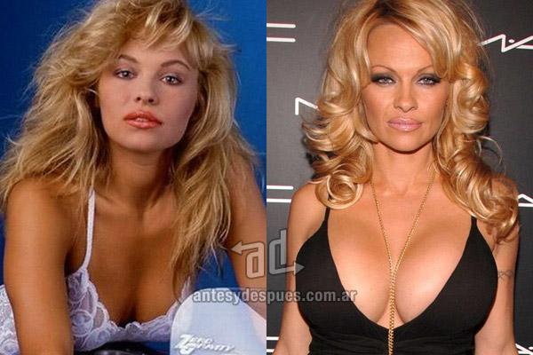pamela-anderson_breast-augmentation_antesydespues.com.ar