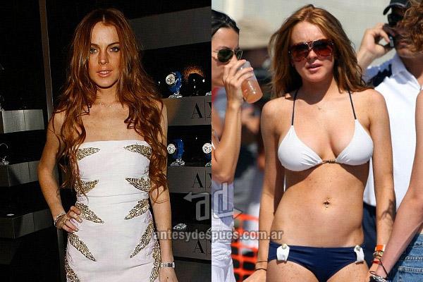 lindsay-lohan_breast-augmentation_antesydespues.com.ar