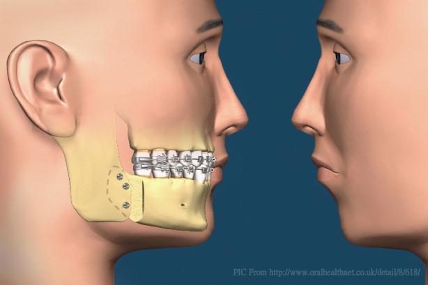 Orthognathic-Surgery
