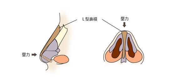 隆鼻自體軟骨隆鼻微晶瓷隆鼻玻尿酸隆鼻11