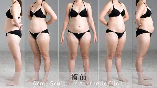 自體脂肪雕刻-威塑案例1