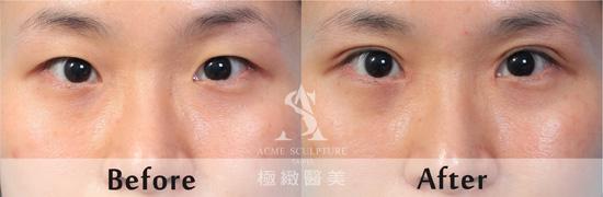eye-case(chung)-1