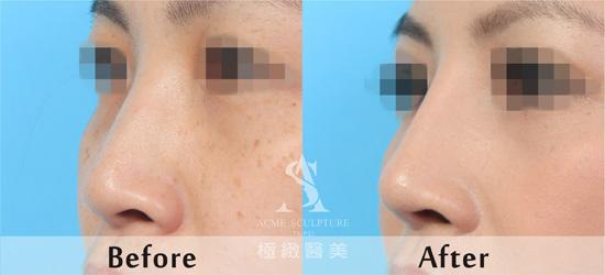 nose-5-1