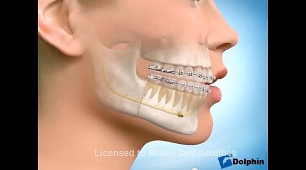 極緻診所-戽斗正顎手術10