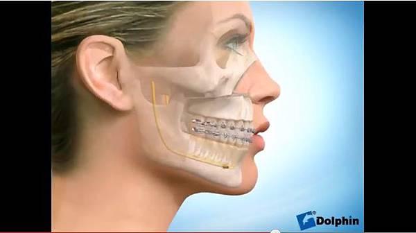 極緻診所-戽斗正顎手術18