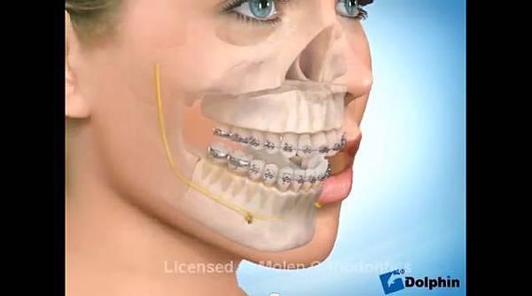 極緻診所-戽斗正顎手術17
