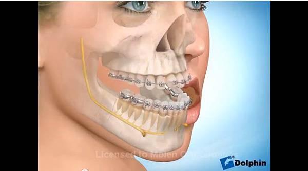 極緻診所-戽斗正顎手術15
