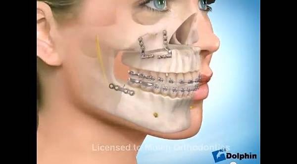 極緻診所-戽斗正顎手術19