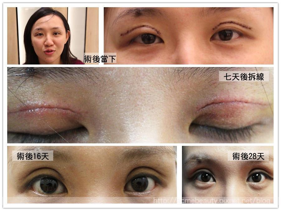 雙眼皮割雙眼皮逢雙眼皮推薦醫師荊偉政極緻醫美診所12