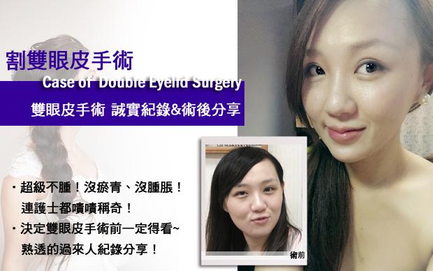 雙眼皮割雙眼皮逢雙眼皮推薦醫師荊偉政極緻醫美診所AA