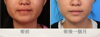 極緻醫美診所 削骨 正顎 國字臉 肉毒桿菌 抽脂 瘦臉