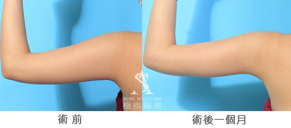 黃金z波抽脂 超音波抽脂 抽脂 減肥 極緻醫美診所  瘦小腹 瘦手臂 蝴蝶袖
