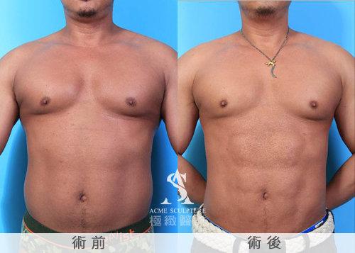 極緻醫美 極緻醫美診所  賴釗毅 威塑抽脂 抽脂 雕塑 六塊肌 腹肌 減肥19