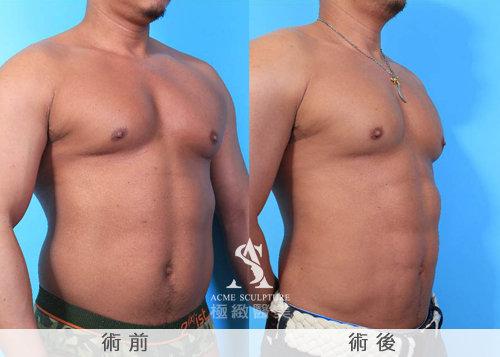 極緻醫美 極緻醫美診所  賴釗毅 威塑抽脂 抽脂 雕塑 六塊肌 腹肌 減肥18