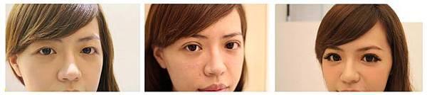 極緻醫美診所 極緻醫美  正顎 削骨 自體脂肪 臉雕 蘋果肌 雙眼皮 雙眼皮手術 割雙眼皮 縫雙眼皮 豐唇 玻尿酸豐唇 推薦 西門町 整型 06