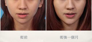 極緻醫美診所 雙眼皮 推薦 人工骨下巴 墊下巴 推薦 雙眼皮 推薦 八倍淨膚雷射 推薦