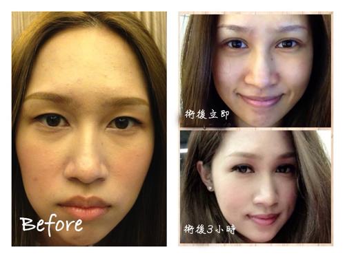 極緻醫美 荊偉政 雙眼皮 雙眼皮 消腫 雙眼皮 術後 雙眼皮 推薦 玻尿酸 下巴 玻尿酸 推薦