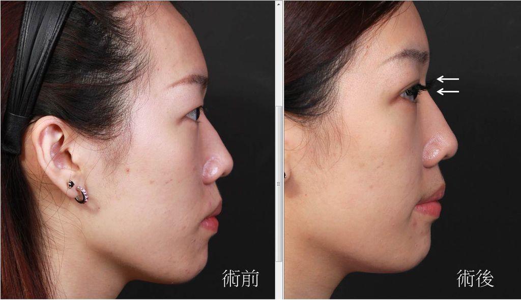 極緻醫美 隆鼻  墊下巴 隆鼻 推薦 墊下巴 推薦