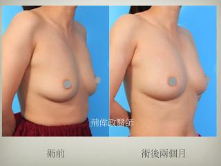 極緻醫美診所 隆乳手術 推薦 威塑抽脂豐胸 自體脂肪豐胸 推薦 隆乳推薦 自體脂肪隆乳 推薦 音波引力自體豐胸 推薦