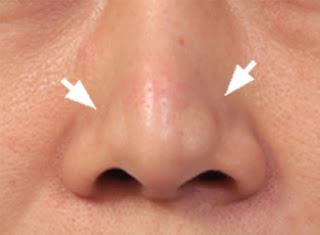隆鼻 推薦 極緻醫美 西門町 整型 隆鼻 鼻頭 隆鼻06