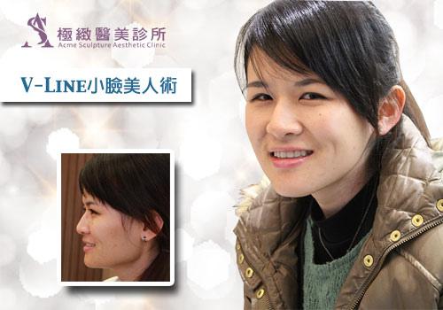 facial-contouring-liao-1