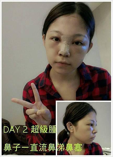 隆鼻 推薦 隆鼻 恢復期 隆鼻 價錢 隆鼻 山根 隆鼻 術後 結構式隆鼻 隆鼻 隆鼻 極緻醫美 西門町極緻醫美 隆鼻 隆鼻日記.jpg