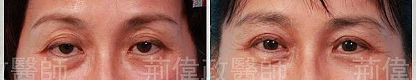 upper blepharoplasty.139