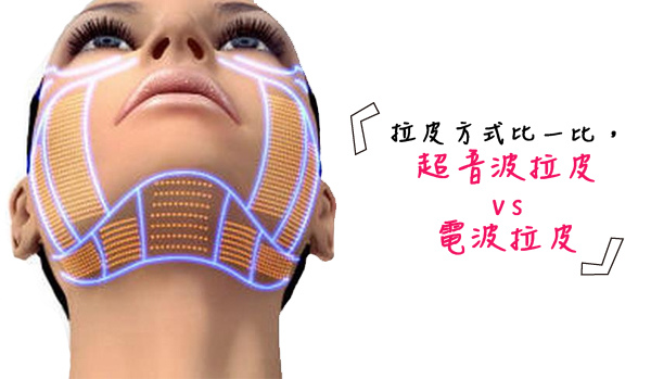 Ulthera™ 極線音波拉皮極限音波拉皮筋膜拉皮超音波拉皮電波拉皮Thermage CPT第三代電波拉皮黃金塑顏電波.jpg