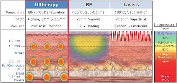 Ulthera™ 極線音波拉皮極限音波拉皮筋膜拉皮超音波拉皮電波拉皮Thermage CPT第三代電波拉皮黃金塑顏電波03.jpg