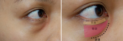 玻尿酸淚溝玻尿酸眼袋玻尿酸推薦玻尿酸極緻醫美玻尿酸廖家慶醫生玻尿酸價格玻尿酸蘋果肌玻尿酸眼袋15.jpg