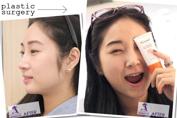 隆鼻 名稱 隆鼻 推薦 隆鼻 恢復期 隆鼻 價錢 隆鼻 費用 隆鼻  隆鼻 立體 隆鼻 山根 結構式隆鼻 結構式隆鼻 推薦 結構式隆鼻  隆鼻日記 隆鼻推薦隆鼻手術極緻醫美隆鼻.jpg