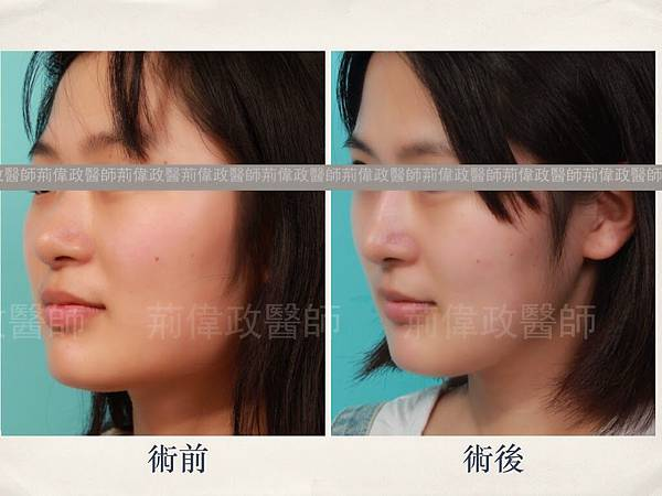 facial contouring.002