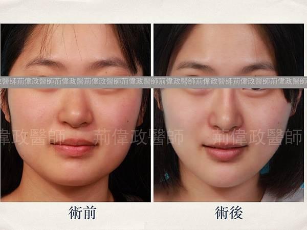 facial contouring.001
