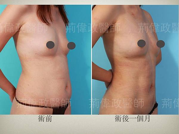Liposuction.002