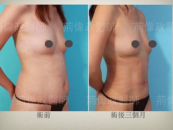 breast.002
