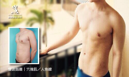 雙波脂雕,六塊肌,腹部抽脂,腹肌,超音波抽脂,人魚線,雙波脂雕,六塊肌,腹部抽脂,腹肌,超音波抽脂,人魚線,雙波脂雕,六塊肌,腹部抽脂,腹肌,超音波抽脂,人魚線,